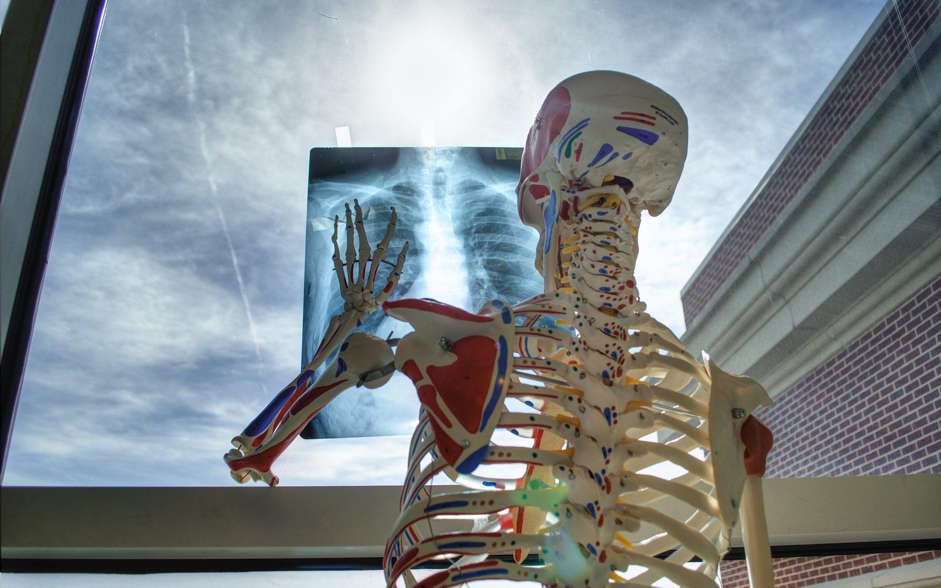 https://pixabay.com/de/skelett-medizinische-technologie-2561573/